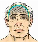 age related brain shrinkage